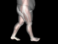 Obesity May Cause Ankle Pain