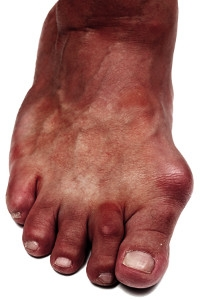 Is a Bunion a Permanent Deformity?